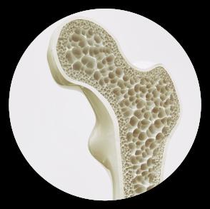 Pérdida de masa ósea y descalcifiación