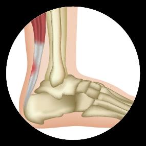 Aumento de la frecuencia de lesiones y fracturas en músculos, tendones y ligamentos