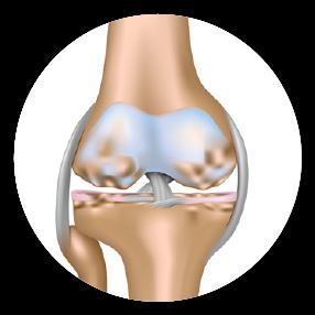 Tendencia a desarrollar enfermedades osteoarticulares degenerativas: osteoporosis, artrosis...